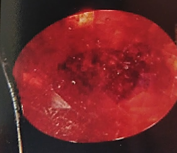 Rubis - Antes do calor